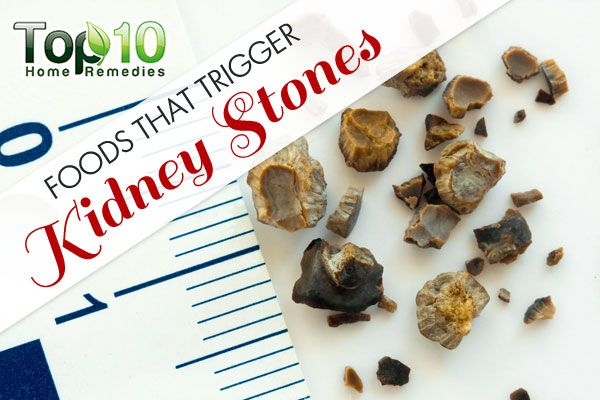 10 Foods that Trigger Kidney Stones | Top 10 Home Remedies