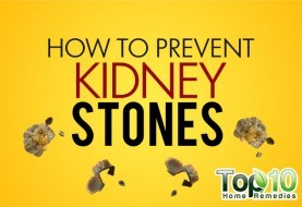 How to Prevent Kidney Stones