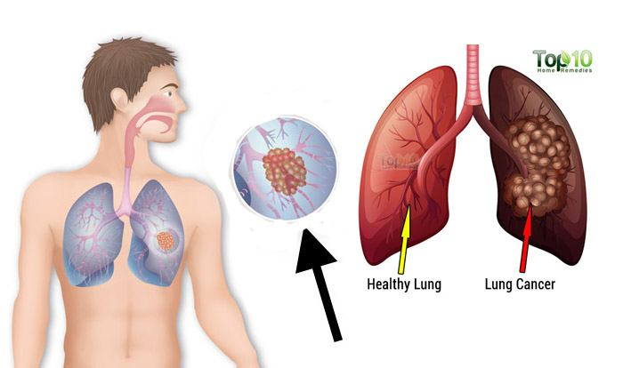 lung cancer signs