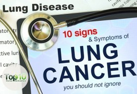 10 Signs and Symptoms of Lung Cancer You Should Not Ignore