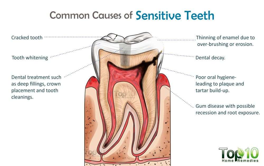 How to Get Rid of Tooth Sensitivity Fast at Home | Top 10 Home Remedies