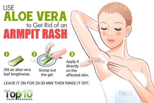 aloe vera for armpit rash