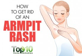 how to quickly get rid of shaving rash