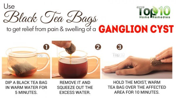 black tea for ganglion cyst