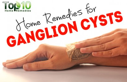 Home Remedies for Ganglion Cysts