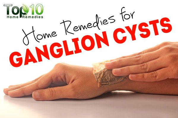 Ganglion Cyst In Wrist Treatment Natural