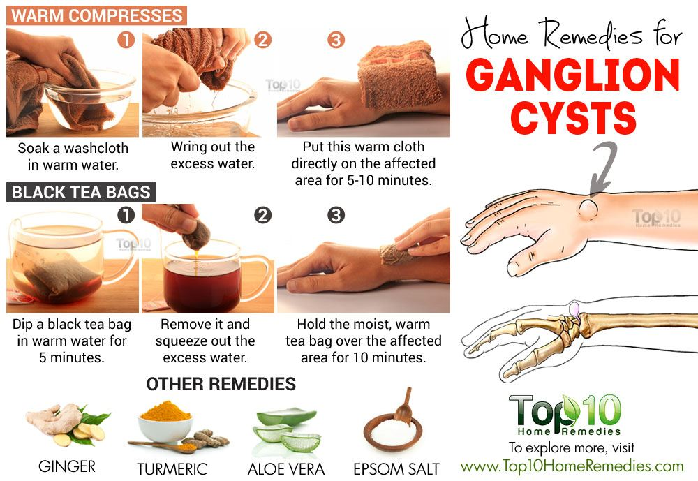 How To Remove Ganglion Cyst Naturally