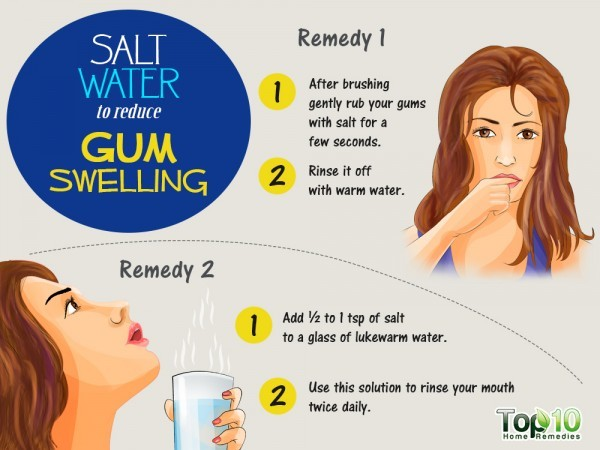 salt water to reduce gum swelling