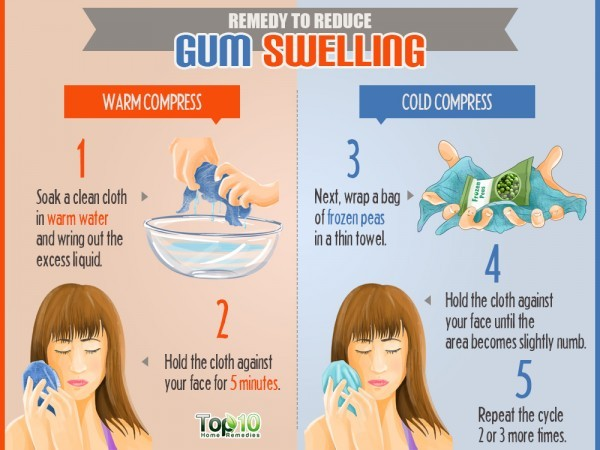 warm and cold compresses to Reduce Gum Swelling