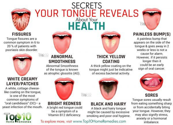 Secrets Your Tongue Reveals about Your Health