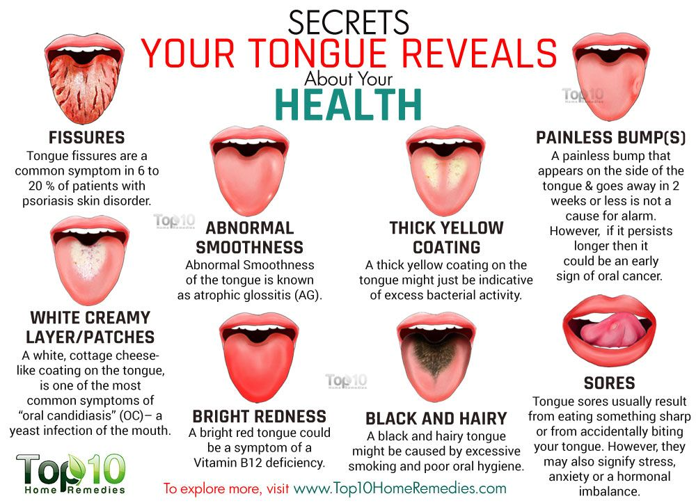 10 Secrets Your Tongue Reveals About Your Health Top 10