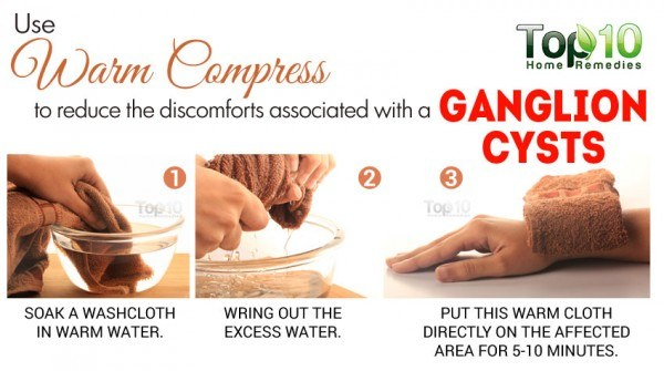 warm compress for ganglion cyst