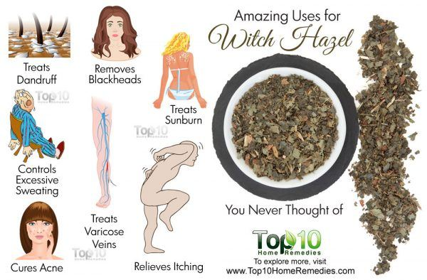 amazing uses for witch hazel
