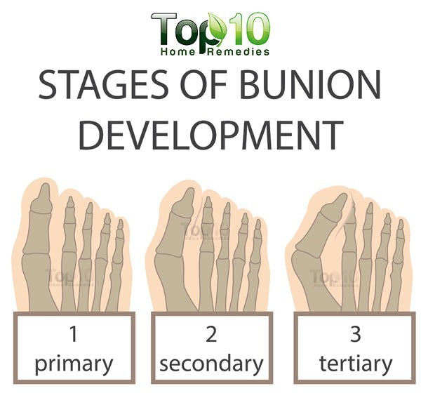bunion development diagram