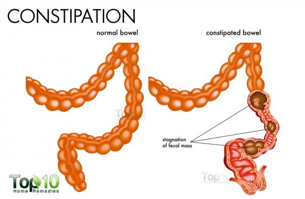 constipation diagram