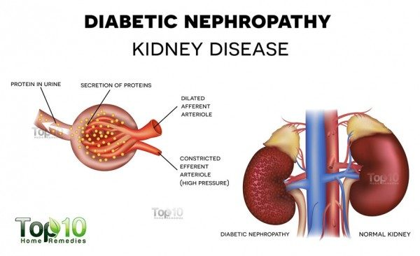 diabetic kidney failure nephropathy