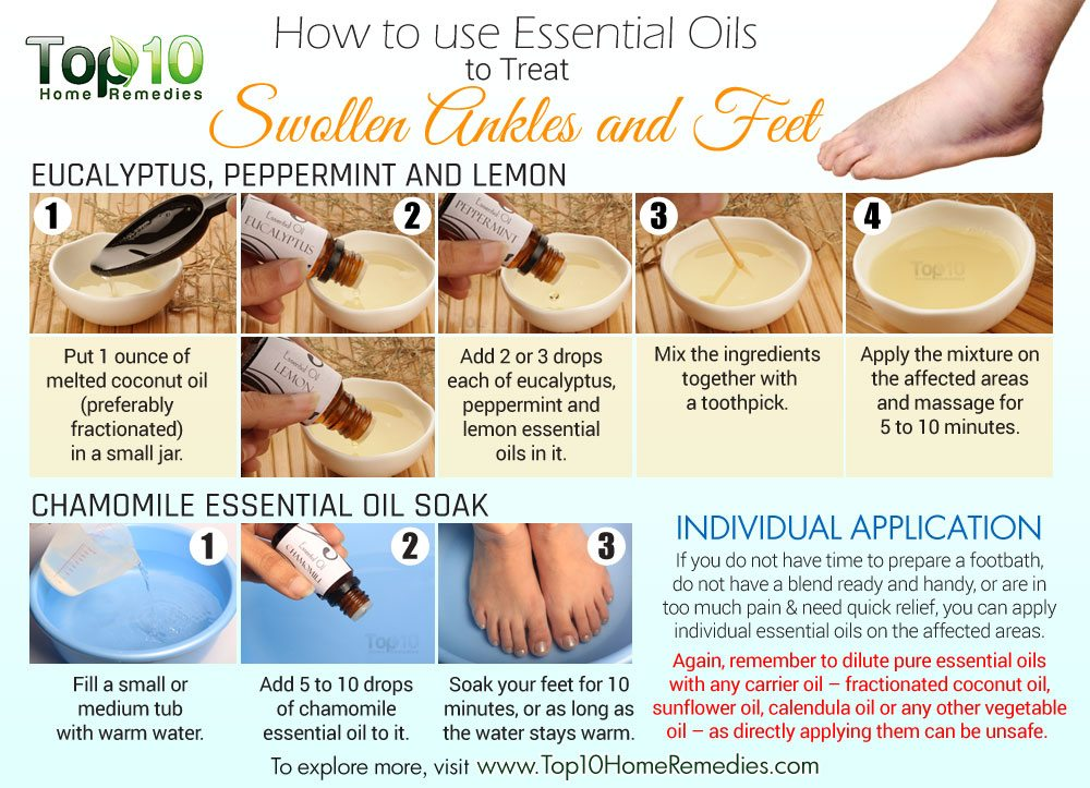 How to Use Essential Oils to Treat Swollen Ankles and Feet ...