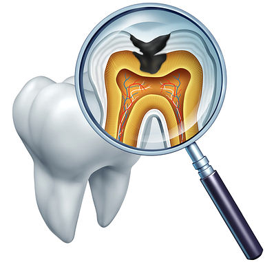cavity on tooth