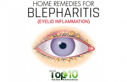 Home Remedies for Blepharitis (Eyelid Inflammation)