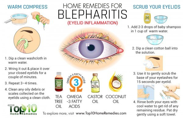 home remedies for blepharitis