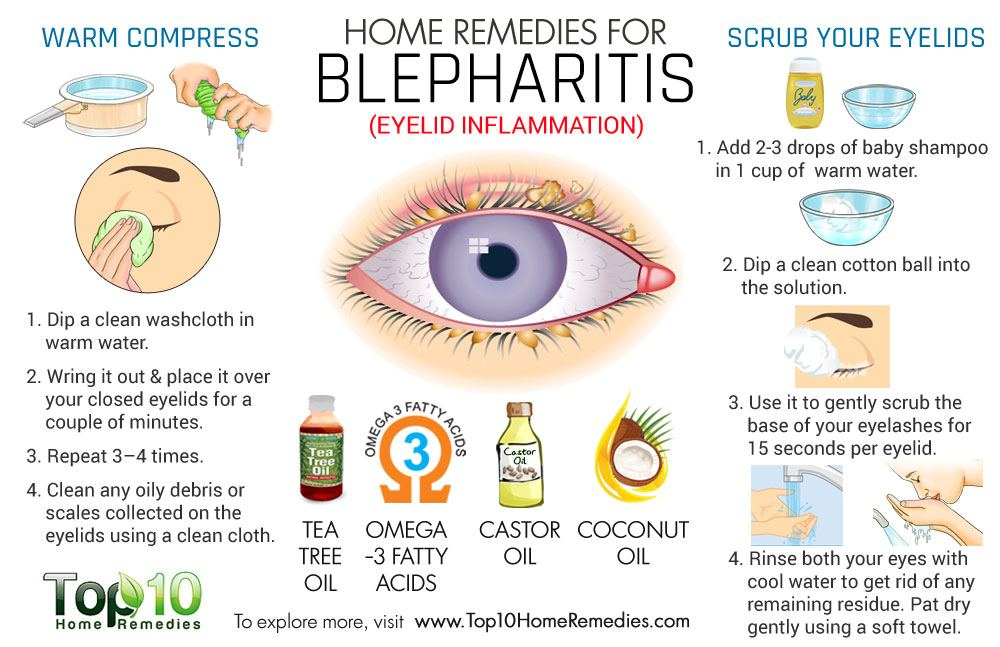 Posterior Blepharitis Natural Remedies