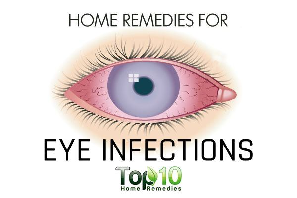 Top home remedies for pink eye