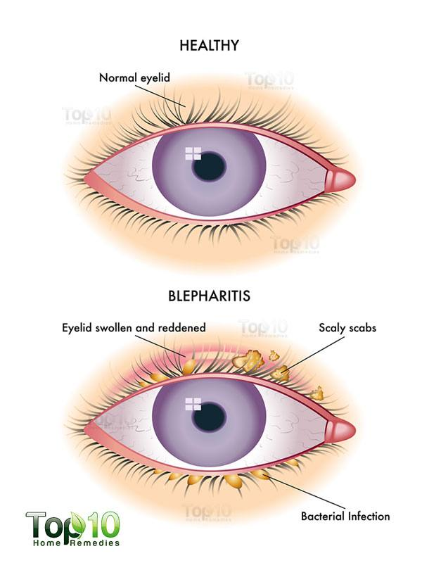 Home Remedies For Blepharitis Eyelid Inflammation Top 10 Home