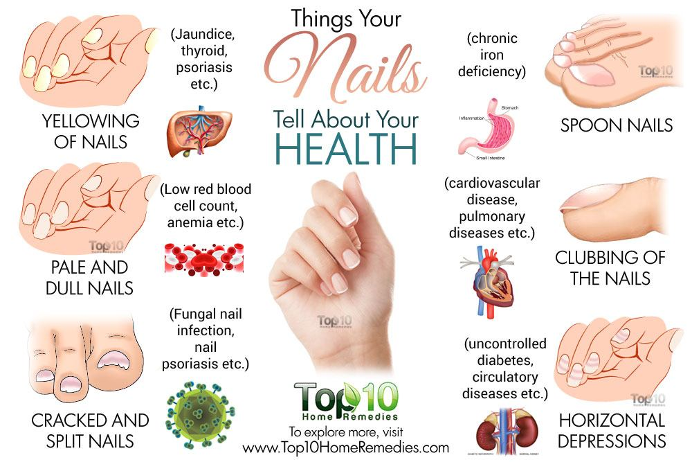 What Your Nails Reveal About Your Health | Top 10 Home Remedies
