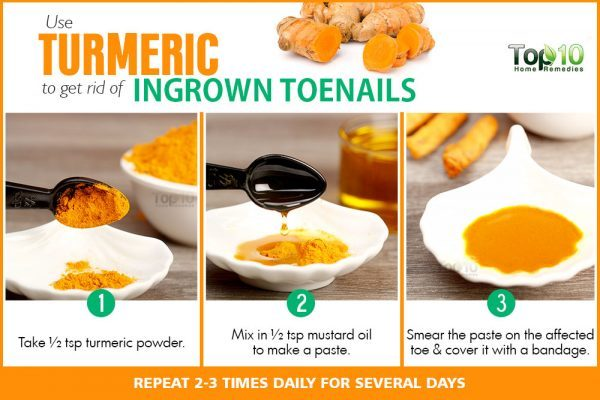 Home Remedies for Ingrown Toenails | Top 10 Home Remedies