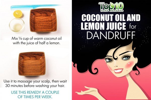 coconut oil and lemon juice for dandruff