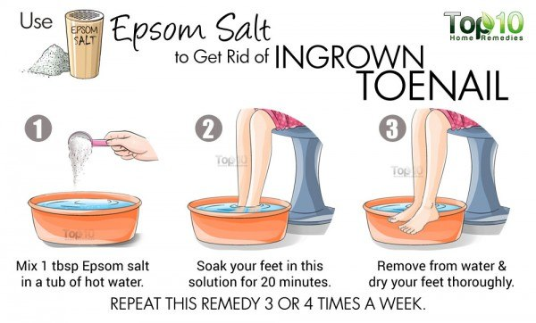 epsom salt for ingrown toenails