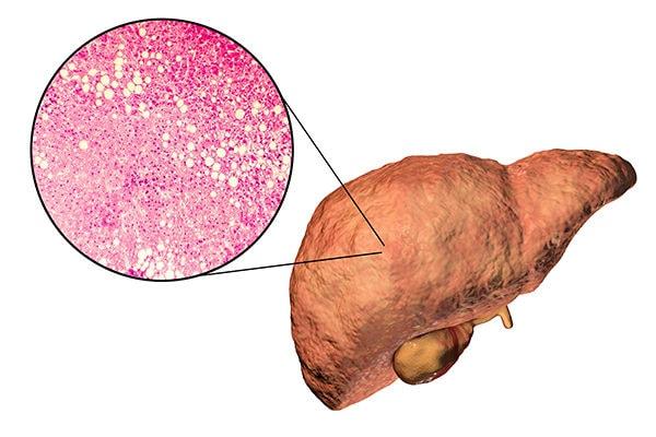 fatty lever disease