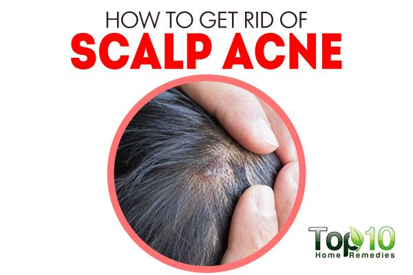 How To Get Rid Of Scalp Acne Top 10 Home Remedies