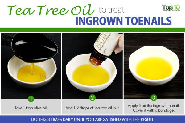 tea tree oil for ingrown toenails