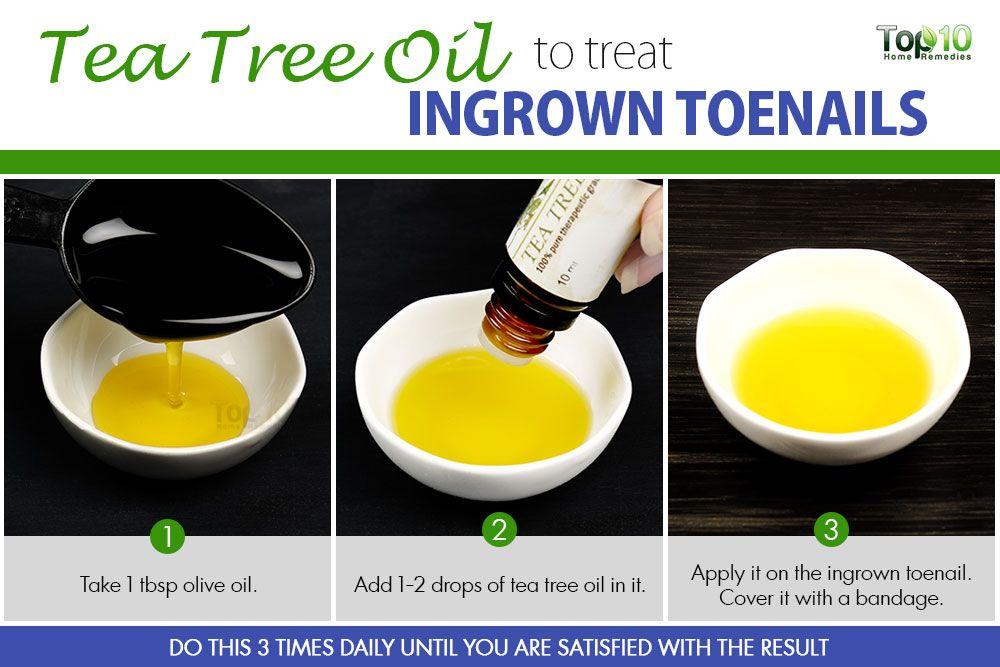 Natural Remedies For Ingrown Toenail