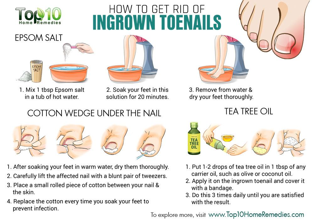 Best Top 10 Home Remedies To Treat Ingrown Toenails (Dental Floss)