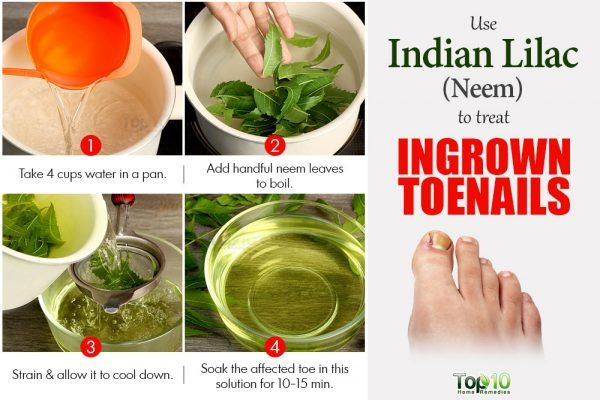 neem for ingrown toenails
