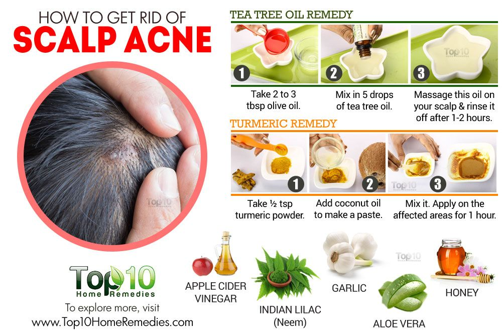 Best Way To Get Rid Of Back Acne Naturally