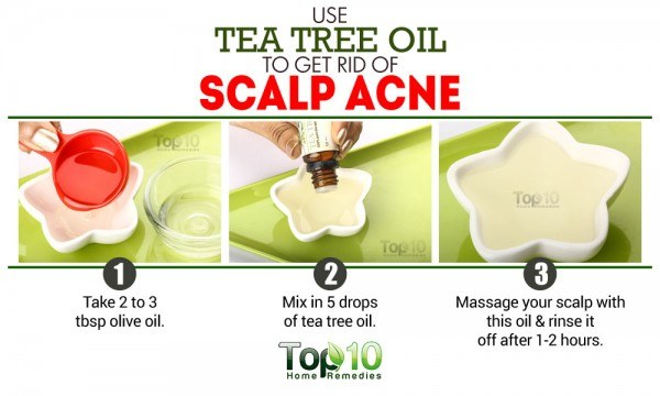tea tree oil for scalp acne