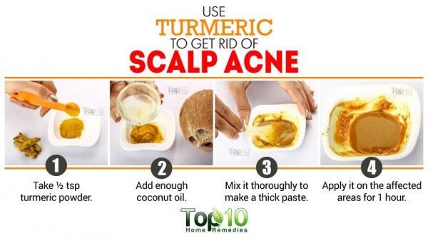 turmeric remedy for scalp acne