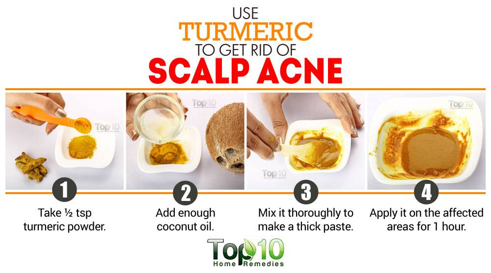 Scalp Pimples Natural Remedy