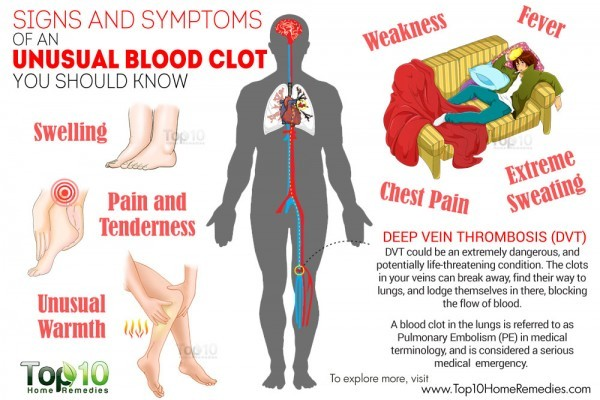signs and symptoms of unusual blood clot