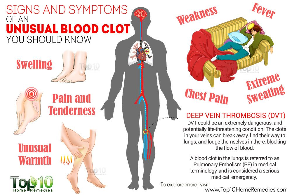 10 signs & symptoms of an unusual blood clot you should know | top, Human body