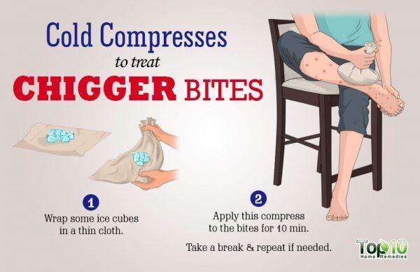 cold compress for chigger bites