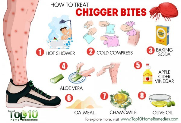 how to treat chigger bites