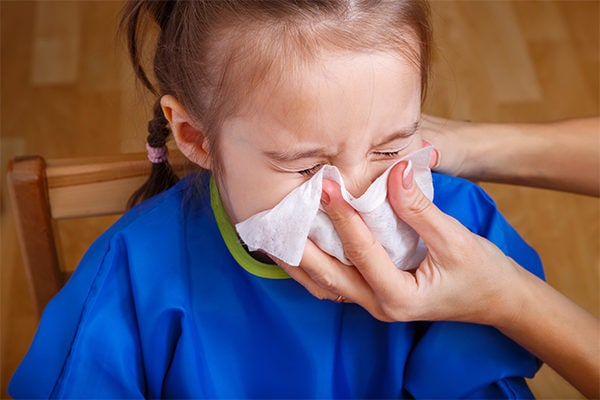 Home Remedies for Your Child'd Runny Nose