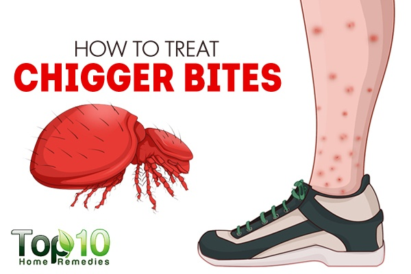 How To Treat Chigger Bites Top 10 Home Remedies