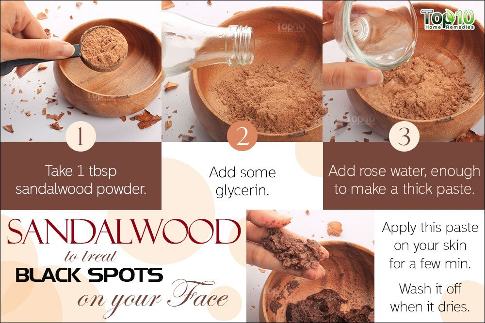 Home remedies for black spots on your face top 10 home remedies sandalwood for black spots ccuart Image collections