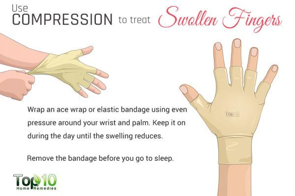 compression band for swollen fingers