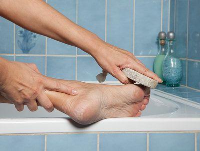 pumice stone to remove dead skin